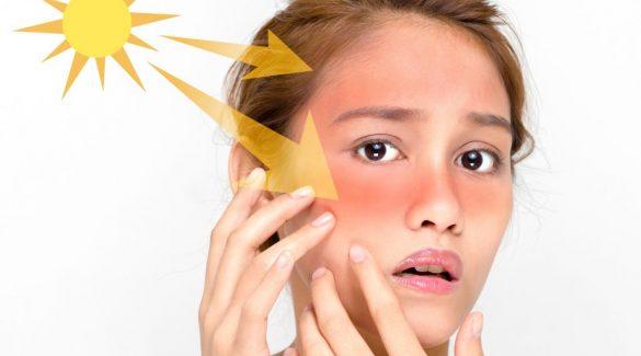 Làm thế nào để phục hồi da bị cháy nắng?